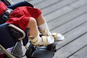 disabled-girl-sitting-wheelchair-her-legs-orthosis-child-cerebral-palsy-inclusion-disabled-girl-sitting-wheelchair-her-151261974